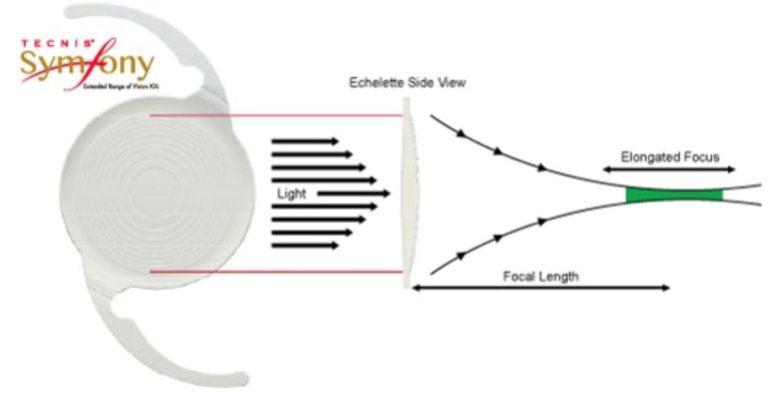 tecnis symfony lens